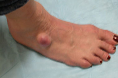 how to tell if you have arthritis in your feet